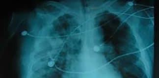Radiografía de Pulmón